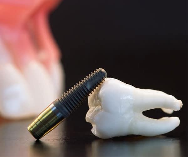 Имплантология и хирургия