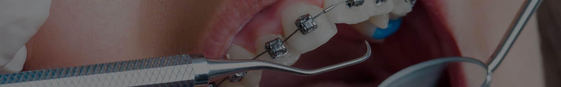 ортодонтия софия